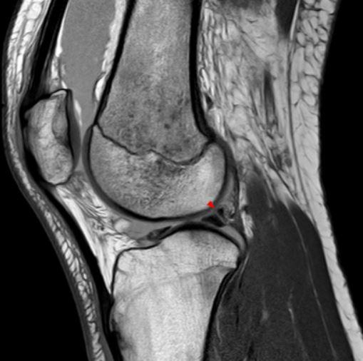 МР-картина повреждения мениска с гемартрозом
