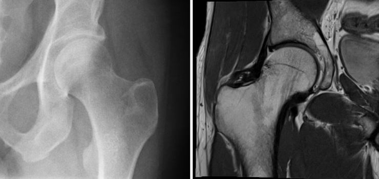 Отличие изображений при рентгене (слева) и МРТ (справа) тазобедренных суставов