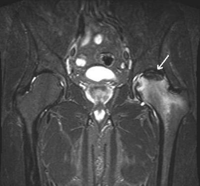 Снимок МРТ тазобедренных суставов