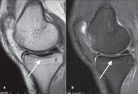 МРТ коленного сустава 1