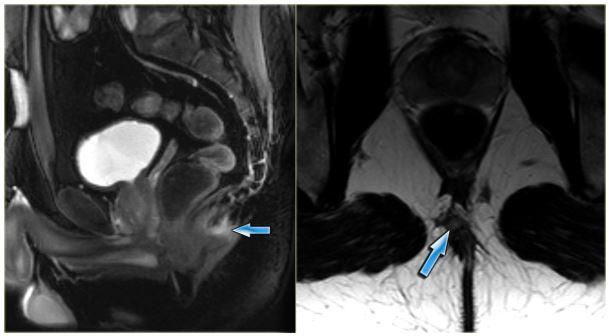 МРТ крестца и копчика с кистой
