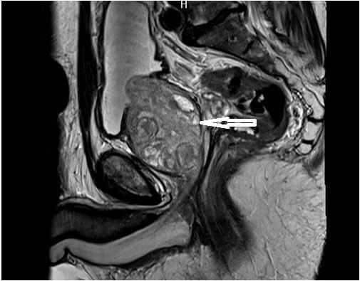 Предстательная железа МРТ