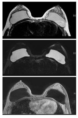 МРТ грудных имплантатов
