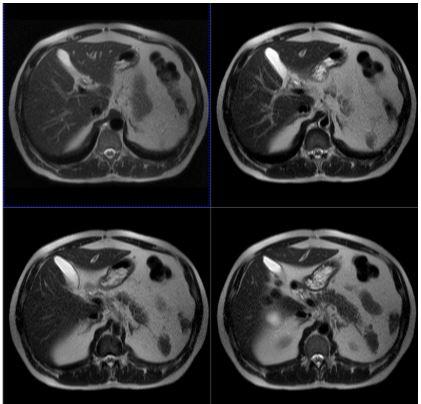 МРТ снимок брюшной полости