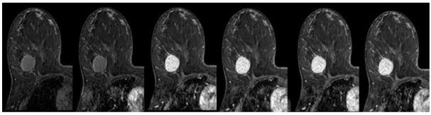 Снимок МРТ новообразование