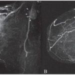 МРТ молочных желез с контрастом