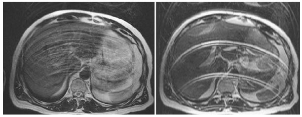 МРТ снимок почек