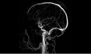 МРТ вен и синусов
