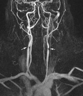 МРТ сонных артерий