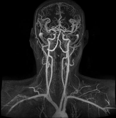 МРТ двух зон головы и шеи