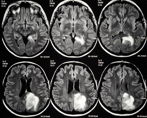 МРТ очага повреждения головного мозга