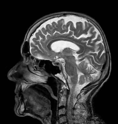 МРТ снимок всех структур головы
