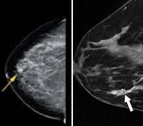 Новообразования молочных желез на маммографии (слева) и на МРТ (справа)