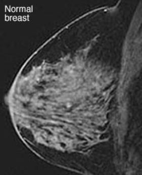 Вариант нормы на МРТ молочной железы