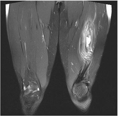 МРТ мягких тканей бедра