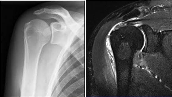МРТ и рентген плеча