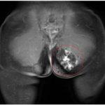 МРТ мягких тканей ягодиц