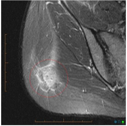 Снимок МРТ ягодиц