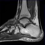 Где сделать МРТ голеностопного сустава стоимость исследовани