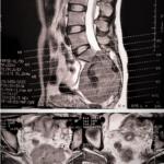 МРТ крестцово-подвздошных сочленений, что показывает