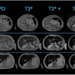 Что показывает МРТ брюшной полости?