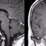 Что показывает МРТ гипофиза?