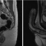 МРТ малого таза что показывает