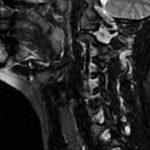 МРТ щитовидной железы что показывает