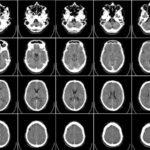 Что показывает МРТ