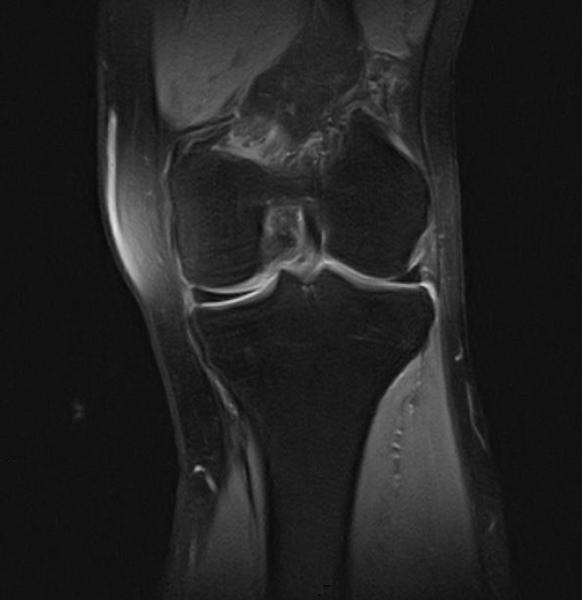 Как расшифровать мрт коленного сустава thumbnail