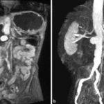 МРТ брюшной полости с контрастированием